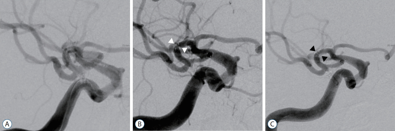 Long Term Outcome of In-Stent Stenosis after Stent Assisted