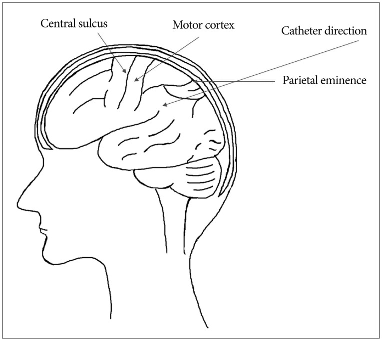 Stereotactic Hematoma Removal of Spontaneous Intracerebral