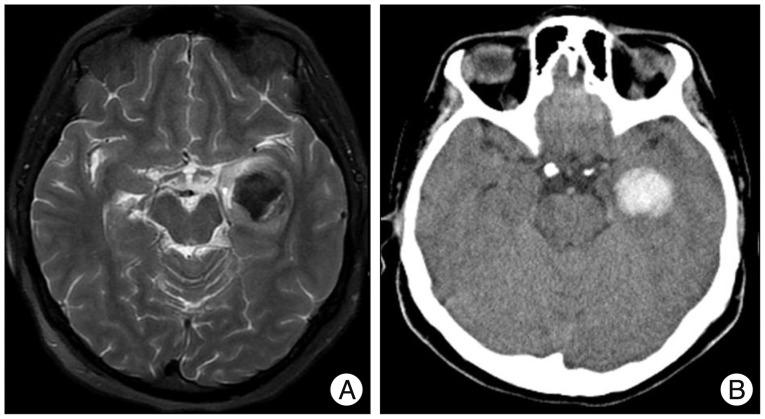 Growing Hemorrhagic Choroidal Fissure Cyst