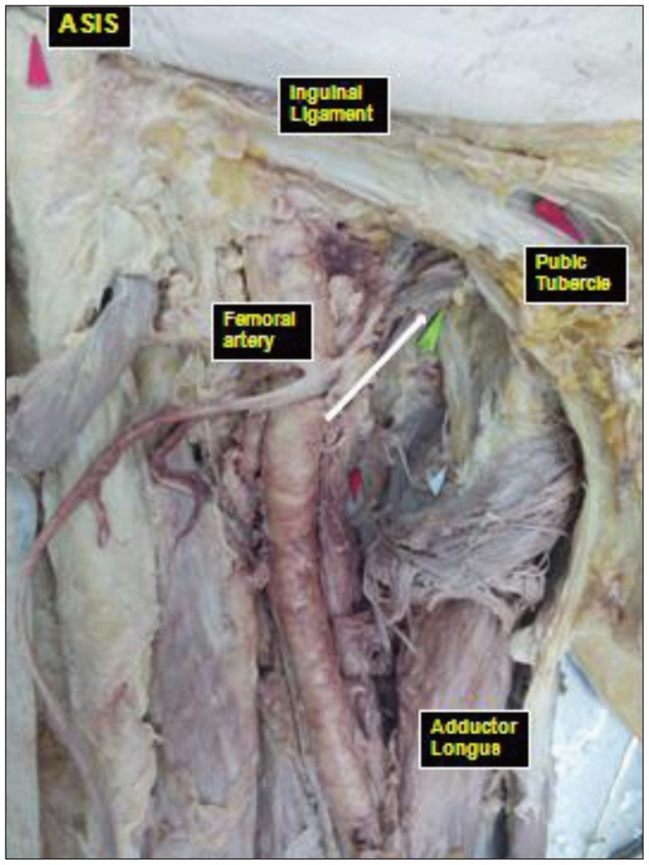 A Morphometric Study of the Obturator Nerve around the Obturator Foramen