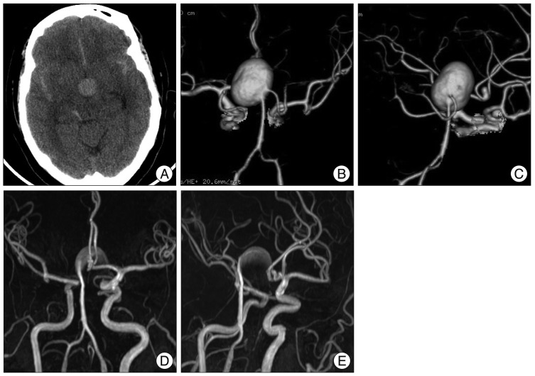 Fig  1 Case 1  Brain CT, CT angiograms (CTAs) and time of