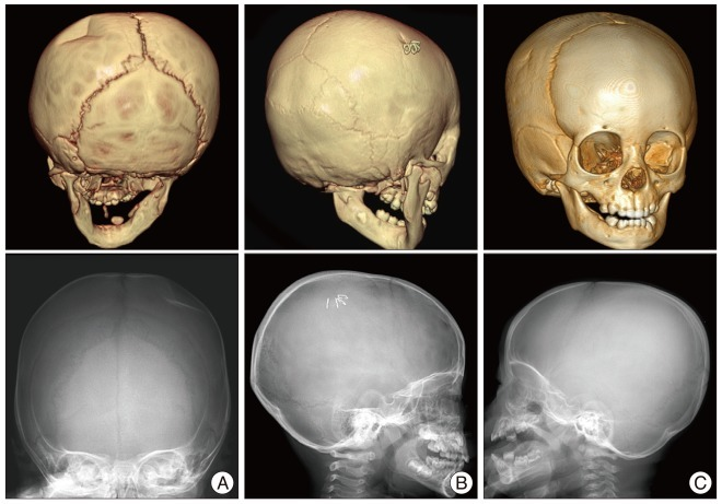 Linear Skull Fracture : Clinical comparison of the predictive value simple