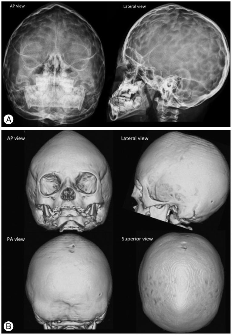 sagittal suture craniosynostosis